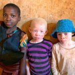 Disablec child Kabanga